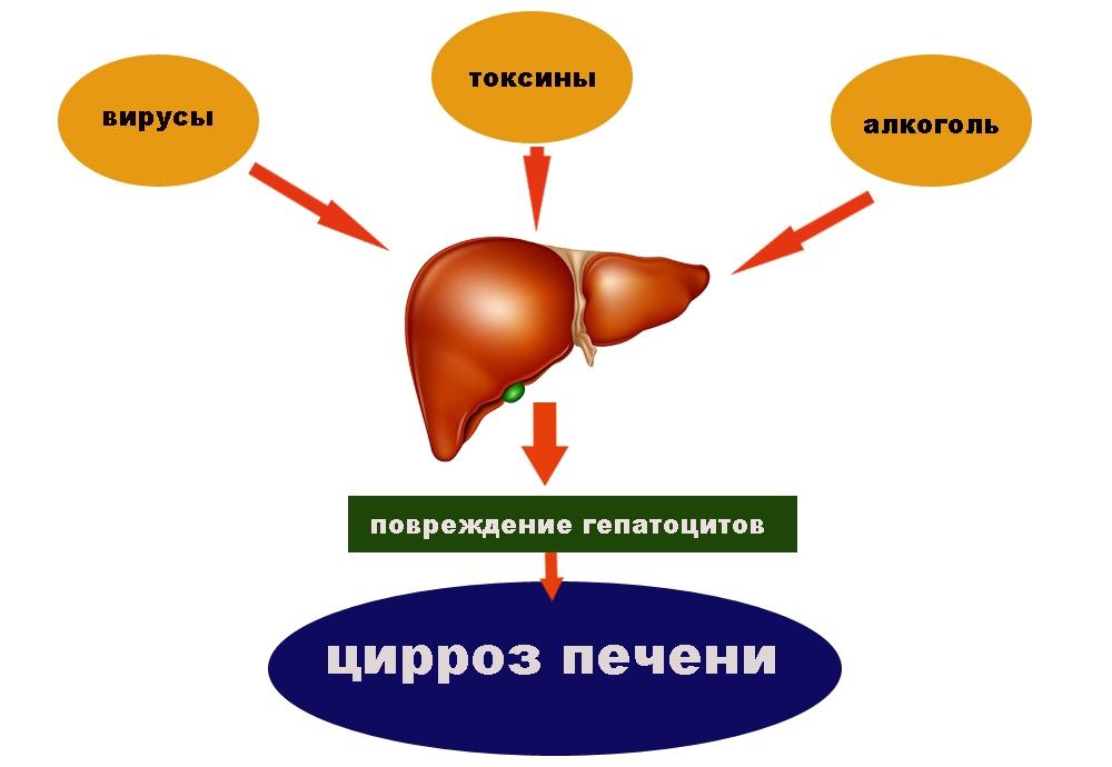 Схема заболевания циррозом печени